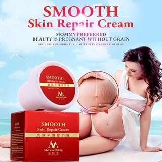 Womdee Scar Removal Cream Repair Cream Smoothing Cream Stretch Marks Cream, Natural Pregnant Ladies Skin Smooth Repair Obesity Wrinkles (35g)