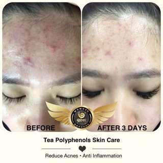 🚚 Wouwou Tea polyphenols skin result