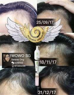 Wouwou Anti-hair loss shampoo hair care ( #hairloss#hairgrowth#)