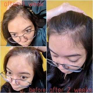 Extreme Hair Grower Conditioner