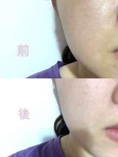 🚚 Es淨膚煥顏精華❗️美白神器👍🏻送LV香水
