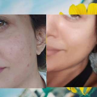 Acne Solution- Clear Skin*