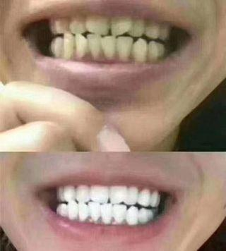 Cosmetic Led Teeth Whitening