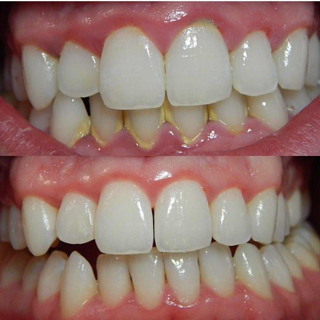 Low cost, super affordable very high quality dental cleaning and other dental services! In Mississauga