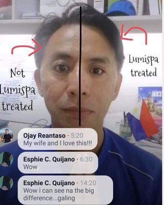 🚚 Lumispa:2 minutes Facial Treatment