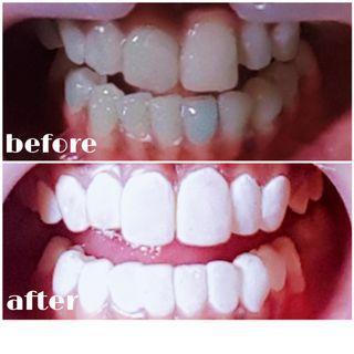Veneer gigi murah jakarta tangerang bleaching eyelash extention extra white porcelain
