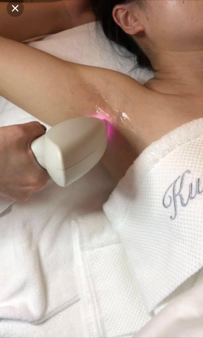 SHR underarms Permanent Hair Removal, Health & Beauty, Face
