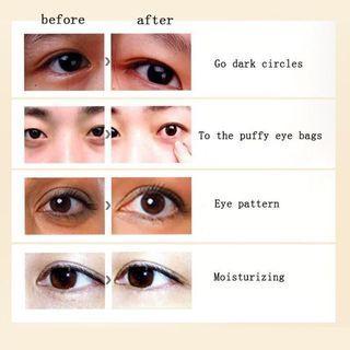 #ENDGAMEyourExcess Eye Treatment Essence for Dark Circles