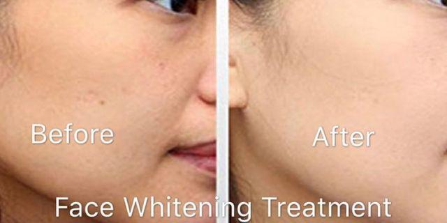 Face Whitening Treatment