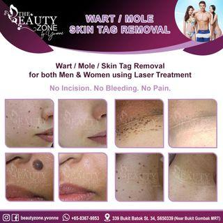 Mole / Wart / Skin Tag Removal For Men & Women, Painless, Only Takes 1 Session