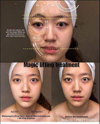 Treatment BB GLOW, Whitening & Lifting