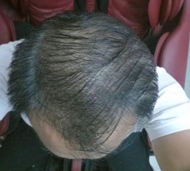 OASIS Hair Growth Serum [For Men & Women]