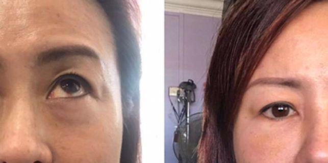 Eye bag lightening non-invasive