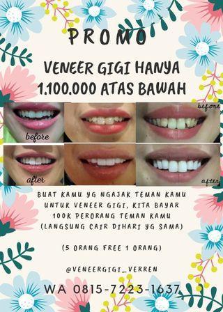 Veneer gigi murah