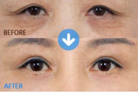 Saggy Eyelid Treatment