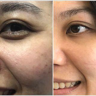 V-jet under eye boosting collagen treatment
