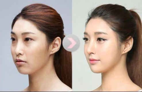 Face Slimming Treatment 50% off (was $199)