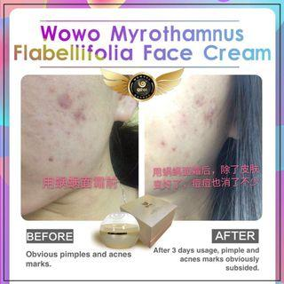 🚚 Wouwou face cream