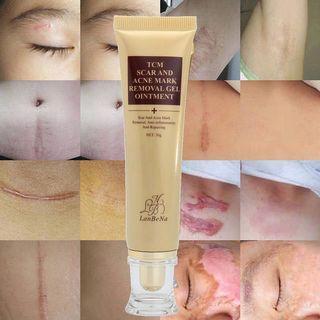 Scar Removal Acne scar, keloid removal