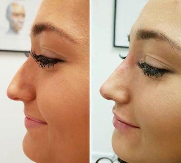 Nose bridge, nose tips , lips , chin , forehead, collagen treatment ( filler) non invasive. No needles needed