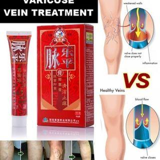 Varicose Veins Cream removal varicose veins treatment Anti Foot Leg Vasculitis