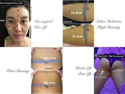 Slimming Body