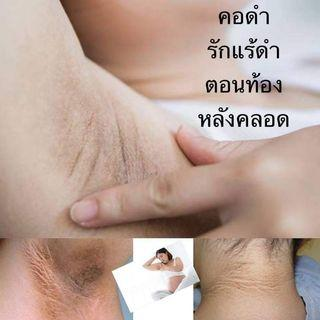 🚚 Tortao for take care your armpit deodorant dry product of Thailand