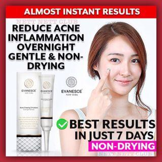 *PROMO!* - Evanesce New York Acne Erasing Emulsion Acne Cream / Pimple Cream / #CarouPay