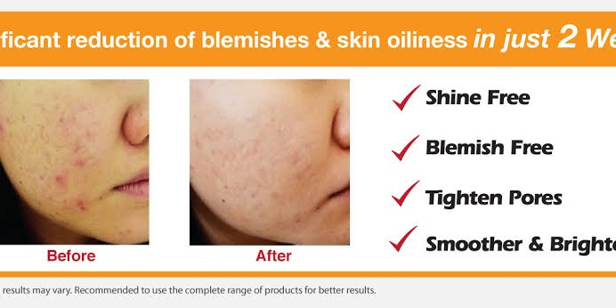 CLINELLE BLEMISH CLEAR ORIGINAL ISI 90%