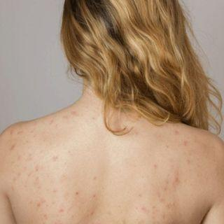 IPL Back Acne and Scarring Removal