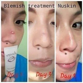 🚚 Epoch Blemish Treatment