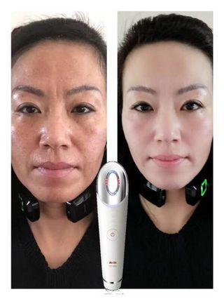 N1 Facial Treatment 90min  ( lifting, pimples, wrinkles, whitening, repair sensitive skin)