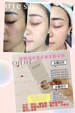 Ojesh hydrating lifting ampoules