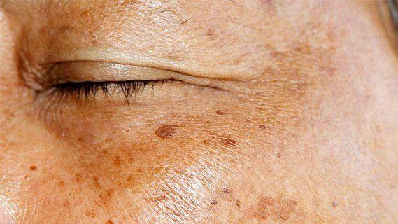 IMMEDIATE RESULTS! IPL for removal of age, liver spots