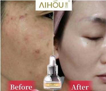Aihou Essence oil