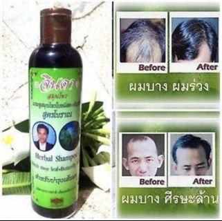 Herbal Shampoo & conditioner for hair loss