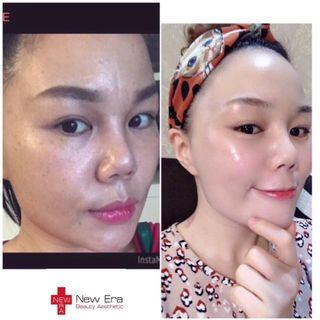 🚚 Korean star skin management
