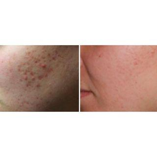 IPL for acne scar removal (unrivaled rate of success)