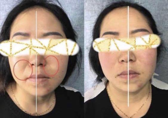 Perfect Face shape treatment  50% off (was $176)