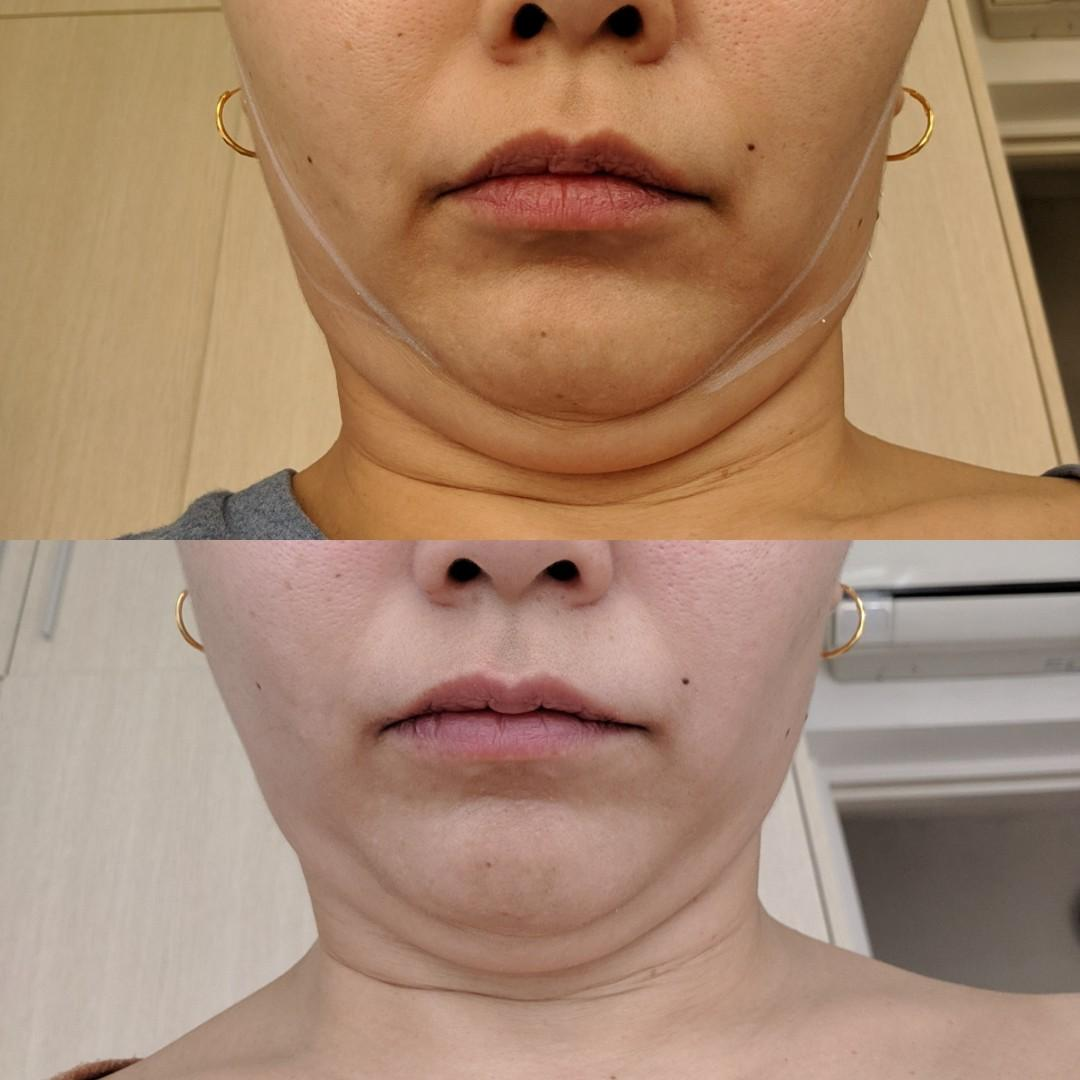 Face firming & tightening! Instant results!
