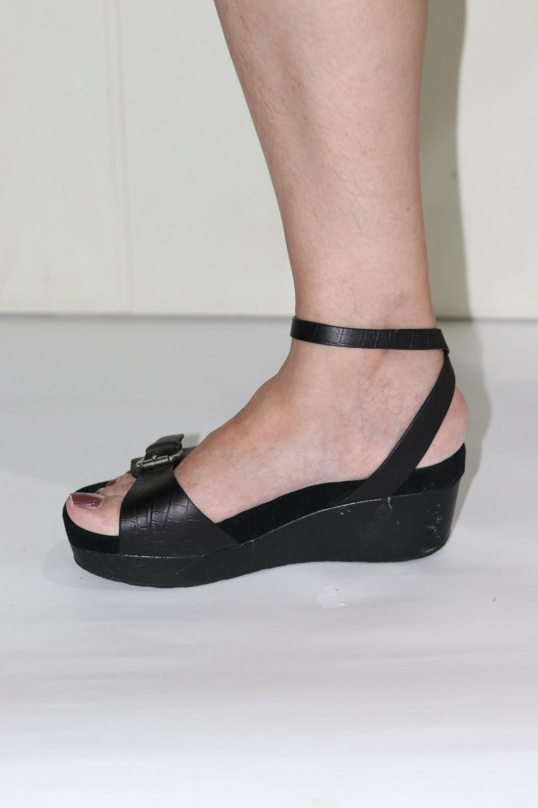 STACCATO WEDGES