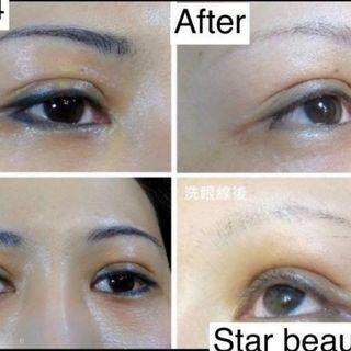 Eyebrow/Tattoo Removal and Correction
