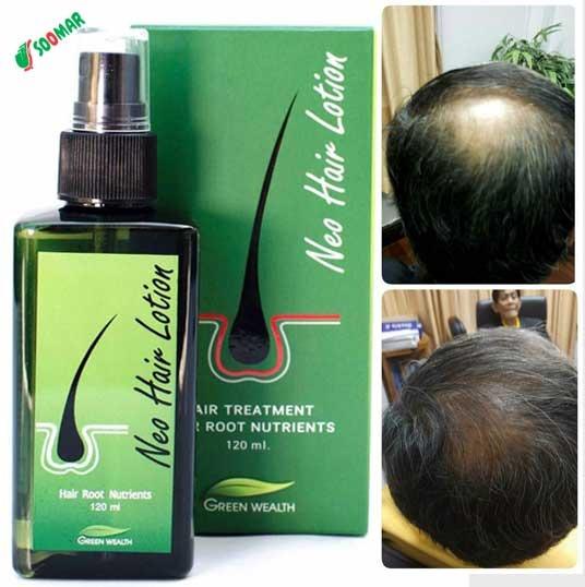 Neo Hair Lotion ( 120ML ), Health & Beauty, Hair Care on Carousell