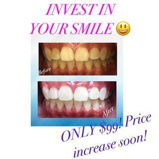 ONLY $99 teeth whitening !! (Reg.$150)