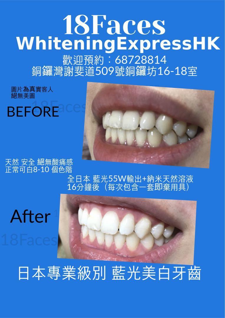 藍光美白牙齒