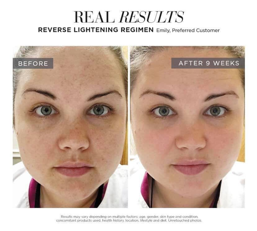 REVERSE REGIMEN  FOR THE APPEARANCE OF BROWN SPOTS, DULLNESS AND DISCOLOURATION
