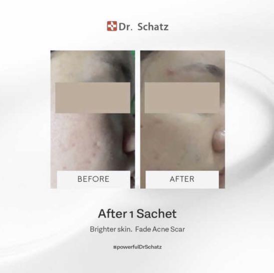 Dr Schatz Stem Cell Mask Sheet Anti aging Brightening