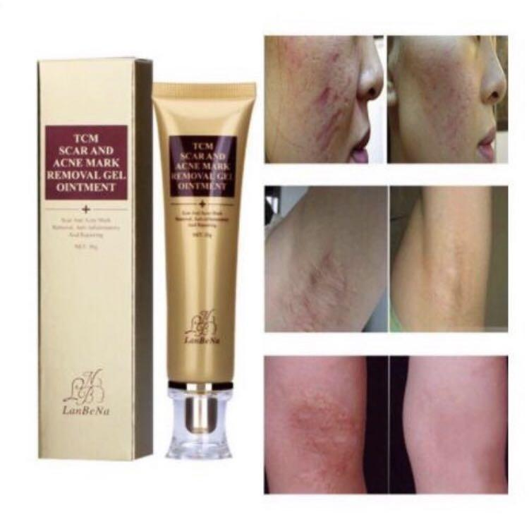 Lanbena Acne Scar Removal Cream Skin Repair Face Cream Po On Carousell