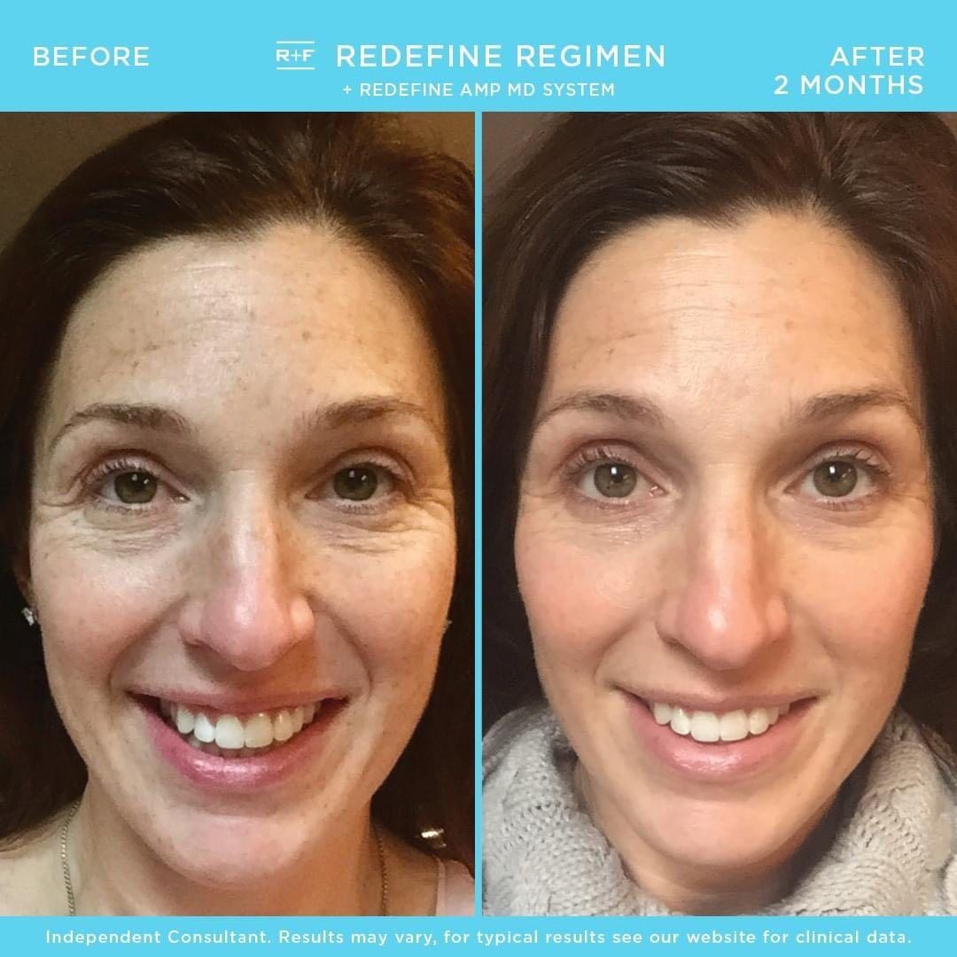 REAL RESULTS WITH RODAN + FIELDS😍
