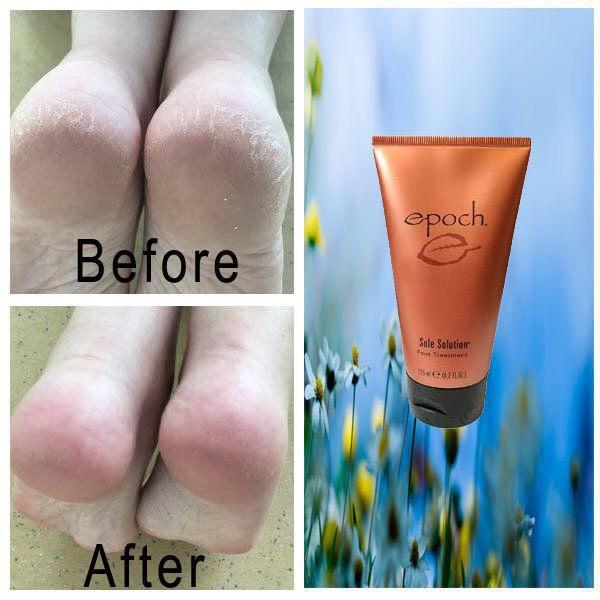 Dry Sole Treatment Cream